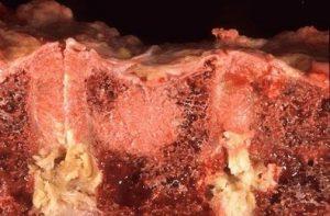 بررسی ضایعات توموری و شبه توموری استخوان (bone lesions)زبان اصلی