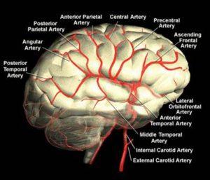 آناتومی عروق مغز و ارتباطات بالینی در حوادث عروقی مغز (cerebrovascular anatomy and clinical correlations